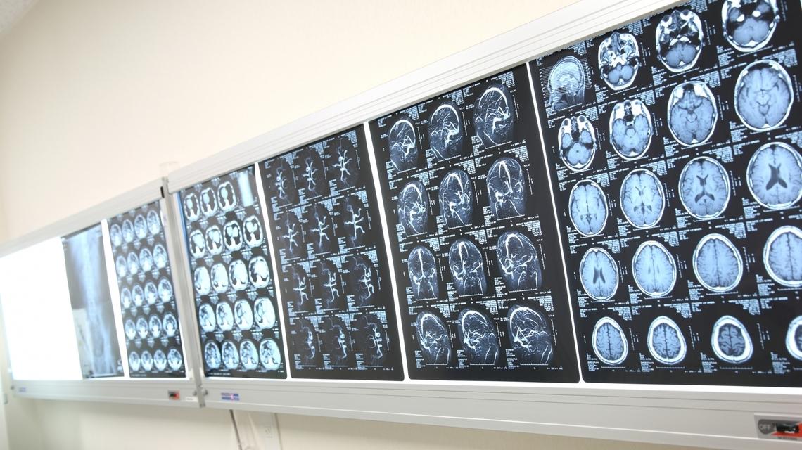 日本体检中核磁共振 MRI/MRA 主要检查什么?